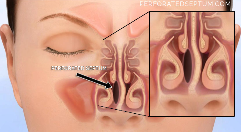perforated septum surgery