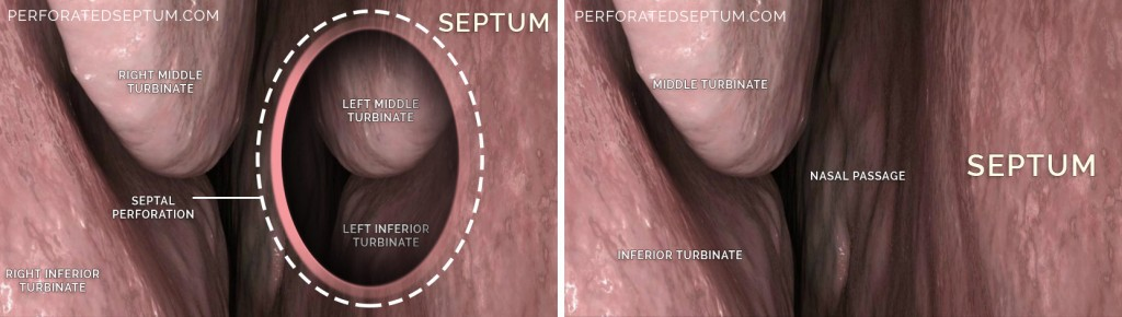 perforated septum surgery los angeles