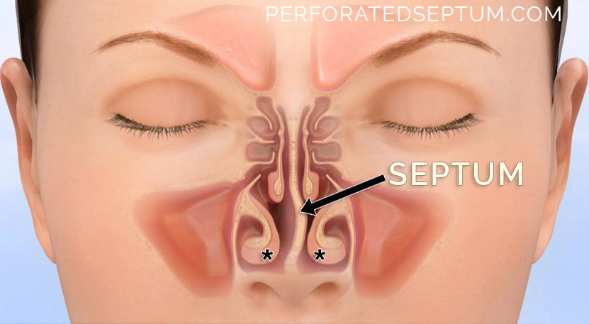 perforated septum treatment