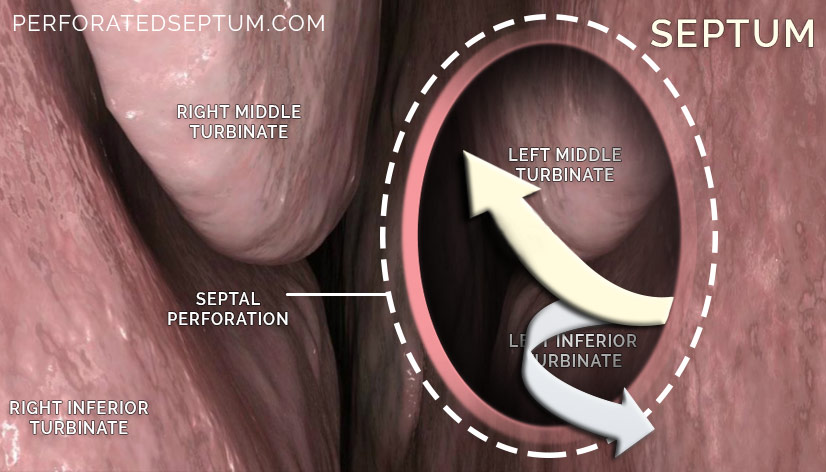 septal perforation treatment