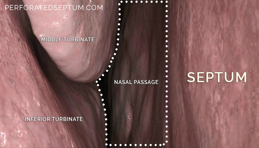 septum perforation