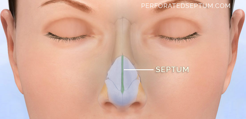 septum surgery perforation